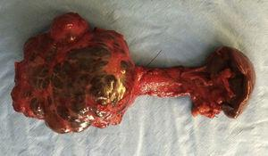 Macroscopic appearance of the resected pancreatic cyst.