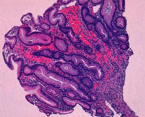 Hematoxylin and eosin stain showing spindle cell proliferation in the submucosa.