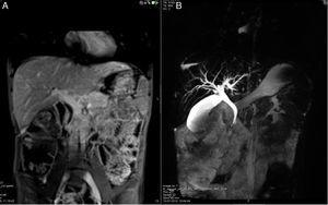Case 2: cholangio MRI: (A) increased diameter of the common bile duct (12mm) and (B) irregular intrahepatic ducts with biliary ectasia and some segmental stenosis.