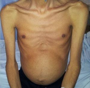 Severely emaciated patient with a distended abdomen.