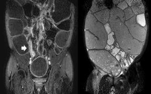MRI-enterography showing contrast enhancement of the last ileal loop (left, arrow) and severe distention of a wide segment of the small bowel (right).