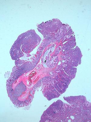 Aggregates of dilated and slightly irregular glands in the submucosa, in connection with the overlying mucosa (scanning microscopy).
