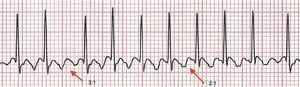"Electrocardiogram showing the ""sawtooth"" or ""picket fence"" pattern of atrial flutter, with 3:1 and 2:1 atrioventricular conduction in the D2 lead."