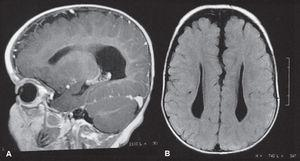 TSkull computed tomography. (A) Sagittal view showing the corpus callosum agenesis and hypoplasia of the cerebellar vermis; (B) Cross-sectional view showing hypoplasia of the vermis and lateral ventricles