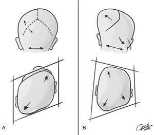 Representation of positional plagiocephaly and true (synostotic) posterior plagiocephaly. (A) Positional plagiocephaly showing: absence of lambdoid suture stenosis, format of a parallelogram skull, ipsilateral compensatory frontal bossing, ipsilateral ear in an anterior position, as if it had been pushed. (B) True posterior plagiocephaly showing: presence of lambdoid suture stenosis, shape of a trapezoid, ipsilateral bulging in the mastoid region, contralateral compensatory frontal bossing, ipsilateral ear stenosis tends to be in a posterior position and downwards, as if the suture pulled it. Credits: Patrick Braga.