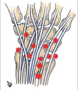 – Esquema representativo de los portales artroscópicos dorsales. 1: portal 3-4; 2: portal 4-5; 3: portal 6-R; 4: portal 6-U; 5: portal 1-2; 6: portal MC-R; 7: portal MCU; 8: portal STT; 9: portal TH; 10: portal radioulnar dorsal distal; 11: portal radioulnar dorsal proximal.