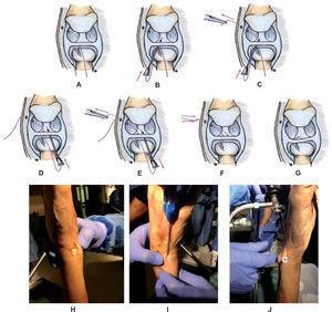– Técnica de reinserción del CFCT en la fóvea mediante anclaje óseo roscado y técnica all-inside. Esquema: el anclaje óseo se coloca en la fóvea a través de los portales 6U (H, I, A) o 6R accesorios. Con la ayuda de una aguja de raquianestesia se introduce el primer hilo de proximal a distal a través del FCT (B) y se extrae por el portal 6R o 4-5 (C). Se procede igual con el otro hilo de sutura (D, J, E). Tras bajar el nudo (F) se consigue aproximar el FCT a la zona de la fóvea (G) que debe haberse reavivado al principio. Espécimen cadavérico: el legrado de la fóvea previo se realiza desde el portal 6U accesorio (H); la colocación del implante se realiza desde 6U y/o desde 6R accesorio, y el anudado se realiza desde el 4-5 o el 6R, dependiendo de por dónde hemos perforado el FCT con la aguja y el hilo de sutura. El artroscopio se mantiene en el portal 3-4 (J).