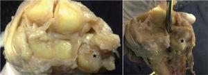– Preparaciones anatómicas de la articulación radiocarpiana de una muñeca derecha. Se ha desinsertado el disco del FCT y ambos ligamentos radiocubitales distales de su inserción en el radio y se ha revertido el CFCT a cubital. Los asteriscos marcan la localización de la fóvea, donde se insertan los ligamentos radiocubitales distales. La fóvea se halla en el cuadrante dorsoulnar de la superficie de la extremidad distal del cúbito.