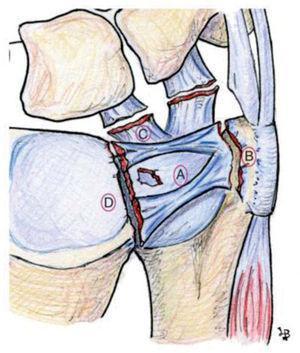 – Representación esquemática de los diferentes tipos de lesión clase I de Palmer. IA: perforación central; IB: desinserción periférica; IC: desinserción distal de los ligamentos ulnocarpales; ID: desinserción radial.