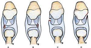 – Imagen que esquematiza que tanto las desinserciones periféricas tipo IB de Palmer (A y B) como las IC (C y D) pueden afectar tanto a la zona dorsal como a la zona volar de la articulación.