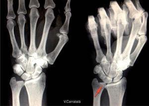 – Radiolografía que muestra el aumento de la varianza ulnar con la pronación y la prensión (aumento dinámico de la varianza ulnar).