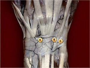 – Portales de artroscopia más utilizados en las fracturas del radio distal. A) Portal 3-4 (entre extensor pollicis longus y extensor digitorum comunis) como portal de trabajo. B) Portal 4-5 (entre extensor digitorum comunis y extensor digiti minimi) como portal auxiliar de la reducción. C) Portal 6R (radial a extensor carpi ulnaris) para la óptica. La utilización de este portal para la lente permite ver mejor la superficie articular y evita desplazar los fragmentos de la fosa del semilunar cuando se introduce el trócar por el portal 3-4.