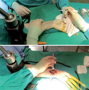 – Una vez completada la artroscopia diagnóstica se libera la tracción y se coloca la mano en supinación sobre la mesa para realizar la fijación por vía volar.