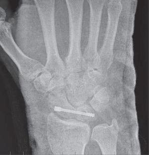 – Radiografía convencional anteroposterior que muestra un procedimiento RASL con un tornillo colocado adecuadamente, con una correcta reducción del GAP o espacio escafolunar.