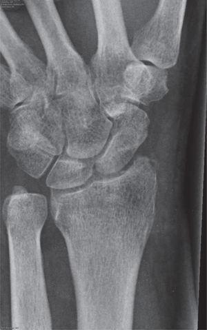 – Radiografía convencional anteroposterior que muestra una muñeca que mantiene la reducción y la correcta función articular tras la retirada del tornillo tipo Herbert, 8 meses después de un procedimiento RASL.