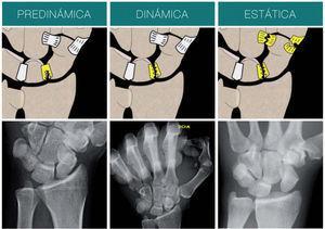 – Inestabilidad predinámica: lesión parcial del ligamento escafolunar. Tanto en la radiografía simple como en la dinámica no se observa ninguna patología. Inestabilidad dinámica: lesión completa del ligamento escafolunar. En la radiografía dinámica (supinación puño cerrado) se aprecian las alteraciones radiográficas. Inestabilidad estática: lesión asociada de los estabilizadores secundarios. En radiografías simples se puede observar la mala alineación.