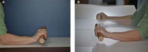 – Fase inicial de la propiocepción. Terapia en espejo. A) Se observa la mano sana trabajando con una pica el movimiento de extensión. Lo que el paciente ve reflejado en el espejo es lo que intentará reproducir con la mano lesionada justo en el otro lado del espejo (B).