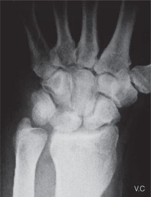 – Imagen radiográfica a los 2 meses de la cirugía donde se aprecia el fragmento de ganchoso resecado.