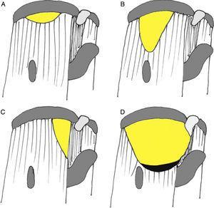 Clasificación de Burkhart (Davidson y Burkhart19). A) Tipo I: en cuarto de luna sin o con leve retracción. Tipo II: roturas longitudinales en forma de U (B) o L (C). D) Tipo III: roturas masivas retraídas.