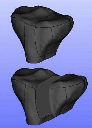 Imagen geométrica de la fractura en la meseta tibial.
