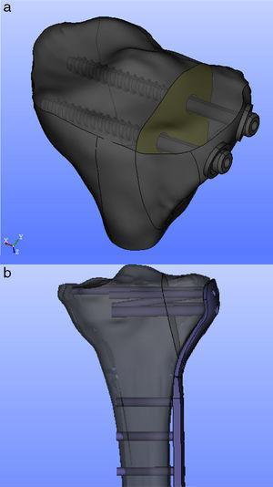 a) Constructo de la fractura con 2 tornillos canulados de 6,5mm integrados. b) Constructo de la fractura con placa integrada.