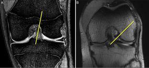 A. Imagen coronal de RMN con rodilla en extensión. Se aprecia la orientación más vertical del LCA sano. B. Imagen de RMN con rodilla a 90°. Se observa la oblicuidad del LCA sano y su inserción en la parte posterior de la pared medial del cóndilo femoral externo y la proximidad con el cartílago articular. Esta imagen corresponde a la imagen artroscópica durante la cirugía con la rodilla a 90° de flexión.