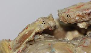 Visión anteroposterior de la articulación acromioclavicular. Tras resecar cápsula y ligamentos vemos la orientación de la carilla articular del acromion hacia anterior, superior y medial y la carilla articular de la clavícula que se orienta hacia posterior, inferior y lateral. A: acromion y C: clavícula.