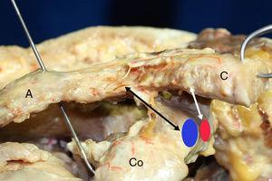 Visión anteroposterior del tercio distal de una clavícula derecha. El ligamento trapezoide (flecha negra) es cuadrado y grueso y se dispone anterolateral respecto al ligamento conoide (flecha blanca) que es triangular, menos grueso y tiene un recorrido más vertical. La inserción del ligamento trapezoide a nivel de la coracoides es en el borde interno del ángulo de la misma (área azul)&#59; mientras que el ligamento conoide se inserta en la parte posteromedial de la raíz de la apófisis coracoides (área roja). A: acromion&#59; C: clavícula&#59; Co: coracoides.