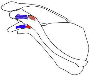 Dibujo que muestra las inserciones del ligamento coracoclavicular (las inserciones claviculares se plasman en la zona superior en correspondencia con la zona inferior). Las inserciones del ligamento conoide (marca roja) se encuentran en la parte posteromedial de la raíz de la apófisis coracoides y en el tubérculo conoide (zona punteada) de la clavícula. Las inserciones del ligamento trapezoide (marca azul) se encuentran en el borde interno del ángulo de la coracoides y en la clavícula se inserta en la línea rugosa (zona con líneas) que se encuentra lateral y anterior respecto al tubérculo conoide.