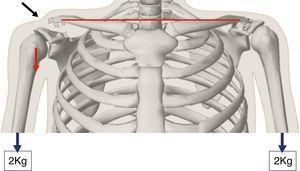 Imagen que muestra el desplazamiento inferior del brazo al producirse una luxación acromioclavicular tipo iii, lo que produce una deformidad en la piel aparente (flecha negra). Al colocar 2kg el desplazamiento del brazo es mayor y la deformidad se hace más prominente.