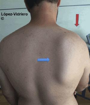 Paciente con luxación acromioclavicular grado iii en el hombro derecho (flecha roja), que a la exploración física presenta disquinesis escapular homolateral. Se objetiva claramente la protrusión del borde inferior de la escápula derecha (flecha azul).