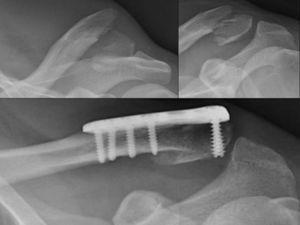 Radiografía simple AP de clavícula derecha: fractura de clavícula distal inestable y desplazada tipo ii de Neer y su resultado final tras ser fijada con una placa específica en T, atornillada, con buena reducción y consolidación.