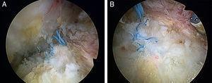 A y B. Detalles del cierre anatómico y completo de la capsulotomía.