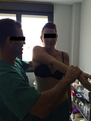 Test de O??Brien: se evalúa el hombro en flexión y aducción de 10°. La supinación del brazo provoca dolor en la AAC.