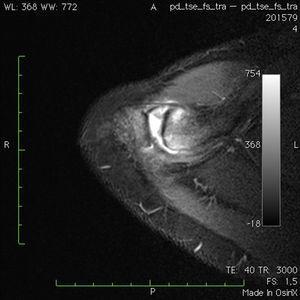 Imagen de resonancia magnética en corte trasversal con secuencia fat sat. Se aprecia edema óseo endomedular, líquido articular y sinovitis capsular.