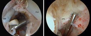 A) Sección del intervalo de los rotadores y ligamento coracohumeral. B) Liberación de adherencias de la porción larga del bíceps. Hombro izquierdo empleando el portal posterior para la visión y el anterior para la instrumentación. SBE: tendón del subescapular; PLB: porción larga del bíceps; SPE: tendón del supraespinoso.
