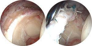 Imagen artroscópica de un caso de ausencia de labrum tratado con injerto de labrum de fascia lata.