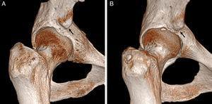 Conflicto subespinoso. Las imágenes de reconstrucción con TAC 3D en plano coronal con rotación interna de la cadera derecha demuestran: A) una espina iliaca anteroinferior (EIAI) normal tipo I, que se sitúa proximal al borde acetabular y con pared lisa entre la EIAI y el borde acetabular, y B) una EIAI tipo II que alcanza el nivel del borde acetabular (flechas negras).