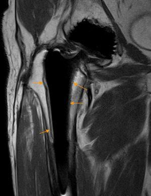 Osteolisis aséptica en prótesis de cadera. El corte coronal en densidad protónica de RM de cadera y fémur proximal derecho demuestra un área de osteolisis bordeando al vástago femoral (flechas naranjas), más evidente en la superficie externa del vástago, caracterizada por una banda de hiperseñal delimitada superficialmente por una fina capa hipointensa.