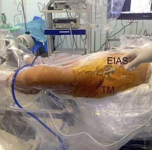 Detalle de la orientación del artroscopio en dirección al trocánter menor con rotación externa de la cadera.