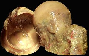 Anatomía macroscópica de la articulación coxofemoral. Se sitúa la cabeza femoral con el cartílago articular (derecha) y la cavidad acetabular con el labrum en herradura a lo largo del reborde acetabular (izquierda). El cierre del labrum en la zona inferior se realiza por el ligamento transverso.