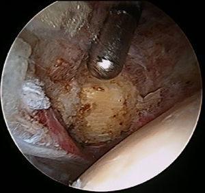 Localización del tendón del psoas a través del compartimento central en una cadera izquierda.