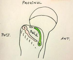 Inserciones de los tendones glúteo medio (1) y menor (2).