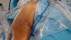 Portales posteromedial, posterolateral y accesorios para el abordaje de la tuberosidad isquiática de una cadera izquierda.
