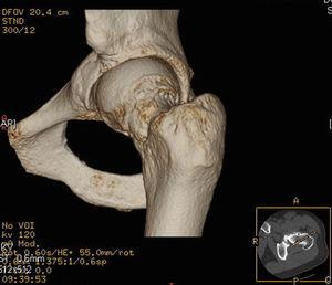 Reconstrución 3D a partir de imágenes de TAC de cadera izquierda. Las flechas señalan la lesión de tipo leva.