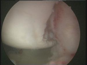 Caso 2, hombro izquierdo. Visión desde el portal ASL del resultado final, vista panorámica de la articulación glenohumeral glenoidea.