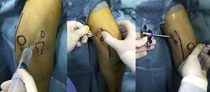 Estructuras anatómicas marcadas que ayudan a la localización de los portales: epicóndilo, epitróclea, punta del olécranon, cabeza radial y trayecto del nervio cubital. a) Se inyecta suero salino a través del punto blando en el triángulo entre la cabeza radial, el epicóndilo y el olécranon. b) Se realiza el portal proximal medial, y se dilata mediante la introducción de un mosquito romo. c) Se introduce la cánula y al retirar el introductor se observa la salida de suero, confirmando que se encuentra intraarticular.