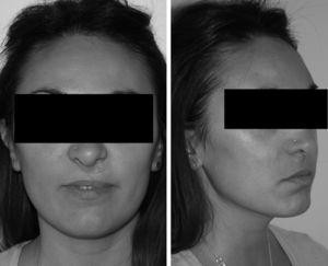 Patient no. 3: as of 8 years of follow-up after osteogenic distraction.