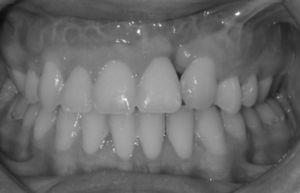 Patient no. 3: overjet and overbite maintained 8 years after the DO.