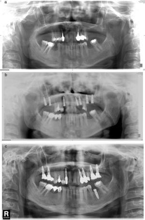 (a) Case number 6: preoperative X-ray that shows cystic periapical lesion at upper right lateral incisor level. Tooth extraction of tooth 12 and curettage of the apical area were performed with good healing. (b) The periapical area reappears after the implant insertion that presents good stability; curettage was performed. (c) Final result after periapical surgery associated with bone filling.